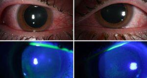 covid eye